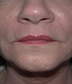 Skin Rejuvenation Patient 57347 After Photo # 2