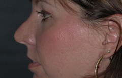 Rhinoplasty Patient 91950 Before Photo # 3
