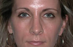Rhinoplasty Patient 12885 After Photo # 2