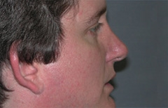 Rhinoplasty Patient 68566 After Photo # 4