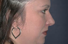 Rhinoplasty Patient 31781 After Photo # 6
