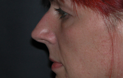 Rhinoplasty Patient 38861 Before Photo # 3