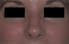 Rhinoplasty Patient 68447 After Photo # 2