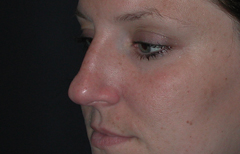 Rhinoplasty Patient 35022 Before Photo # 5