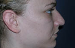 Rhinoplasty Patient 29395 Before Photo # 3