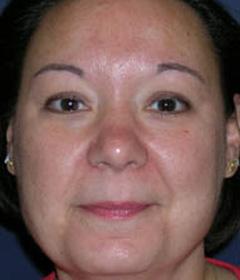 Skin Rejuvenation Patient 14905 Before Photo # 1