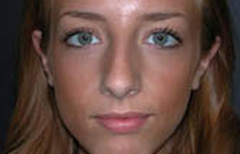 Rhinoplasty Patient 28711 Before Photo # 1