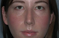 Rhinoplasty Patient 96001 Before Photo # 1