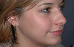 Rhinoplasty Patient 11703 After Photo # 4