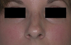 Rhinoplasty Patient 68447 Before Photo # 1