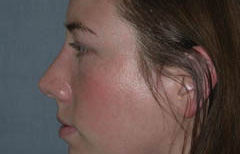 Rhinoplasty Patient 96001 After Photo # 4