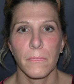 Facial Fillers Patient 34647 After Photo # 2