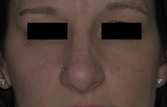 Rhinoplasty Patient 10497 After Photo # 2