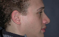 Rhinoplasty Patient 54245 After Photo # 6