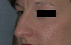 Rhinoplasty Patient 10497 Before Photo # 5