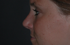 Rhinoplasty Patient 35022 After Photo # 4