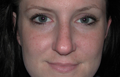 Rhinoplasty Patient 35022 Before Photo # 1