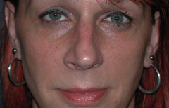 Rhinoplasty Patient 38861 Before Photo # 1