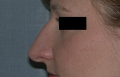 Rhinoplasty Patient 10497 Before Photo # 3