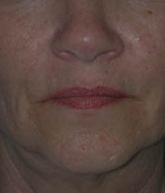 Botox® Cosmetic Patient 84993 Before Photo # 1