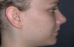 Rhinoplasty Patient 29395 After Photo # 4