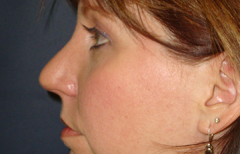 Rhinoplasty Patient 91950 After Photo # 4