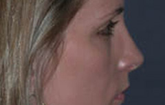 Rhinoplasty Patient 12885 After Photo # 6