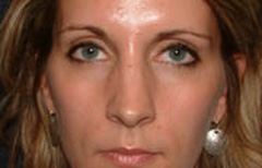 Rhinoplasty Patient 12885 Before Photo # 1
