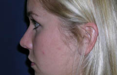 Rhinoplasty Patient 21385 After Photo # 6