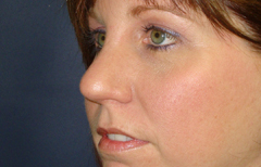 Rhinoplasty Patient 91950 After Photo # 6