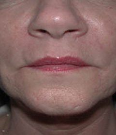 Botox® Cosmetic Patient 84993 After Photo # 2