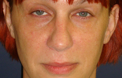 Rhinoplasty Patient 38861 After Photo # 2