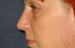 Rhinoplasty Patient 38861 After Photo # 4