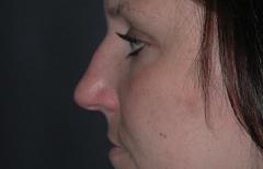 Rhinoplasty Patient 35022 Before Photo # 3