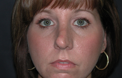 Rhinoplasty Patient 91950 Before Photo # 1
