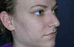 Rhinoplasty Patient 29395 Before Photo # 1