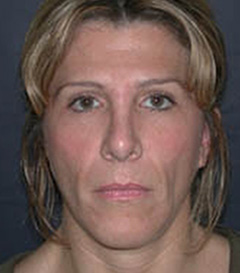 Facial Fillers Patient 34647 Before Photo # 1