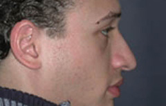 Rhinoplasty Patient 54245 Before Photo # 5