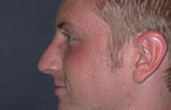 Rhinoplasty Patient 11809 After Photo # 6