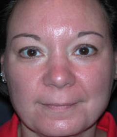 Skin Rejuvenation Patient 14905 After Photo # 2