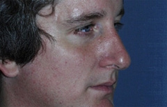 Rhinoplasty Patient 68566 Before Photo # 5