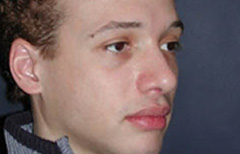 Rhinoplasty Patient 54245 After Photo # 4
