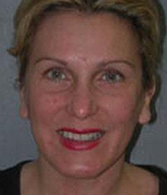 Botox® Cosmetic Patient 12201 Before Photo # 1