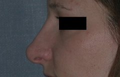 Rhinoplasty Patient 10497 After Photo # 4