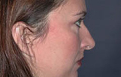 Rhinoplasty Patient 31781 Before Photo # 5