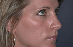Rhinoplasty Patient 12885 After Photo # 4