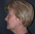 Skin Rejuvenation Patient 75118 Before Photo Thumbnail # 5