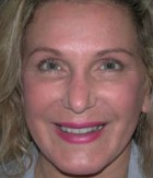 Botox® Cosmetic Patient 12201 After Photo Thumbnail # 2