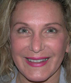 Botox® Cosmetic Patient 12201 After Photo # 2