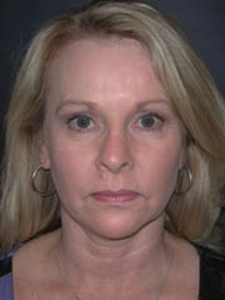 Face Lift and Neck Lift Patient 81195 Before Photo # 1